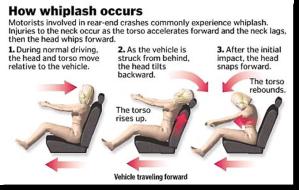 how-whiplash-occurs-jpg
