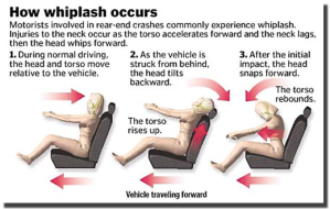 how-whiplash-occurs-jpg